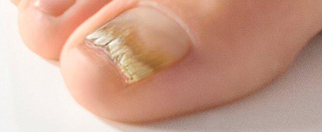 psoriasis naglar behandling