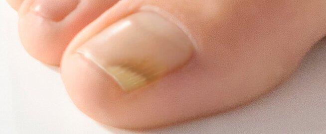naglar luktar illa